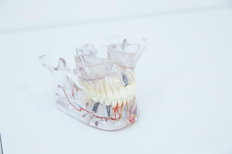 仮歯の重要性